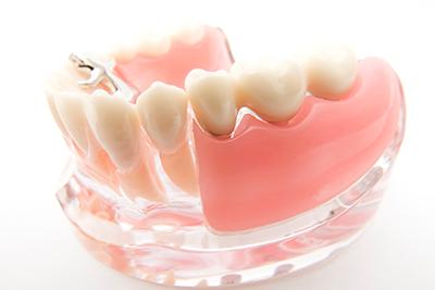 義歯作成(入れ歯)
